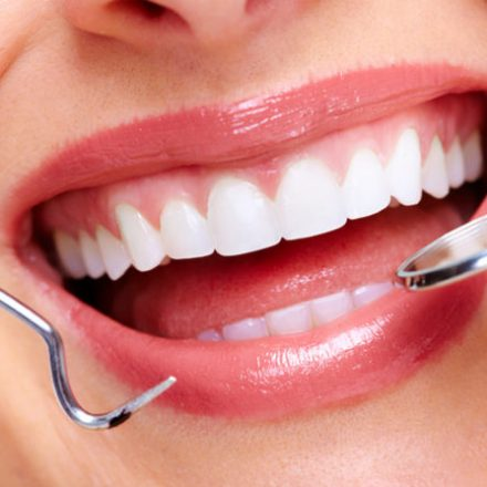 Cosmetic Dental Work Procedures